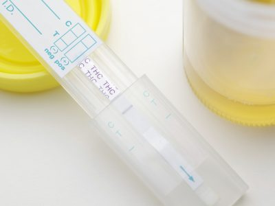 How Long Does Marijuana Stay in Your Urine?